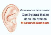 Comment se débarrasser des points noirs dans les oreilles Naturellement Et Facilement