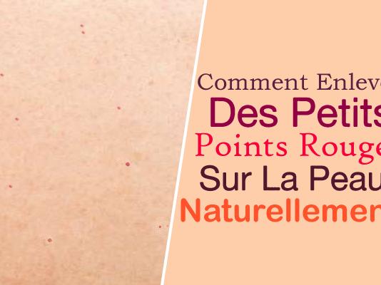 comment enlever des petits points rouges sur la peau naturellement