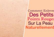 10 Remèdes De Grand-Mère Contre Les Boutons Sur La Langue ...