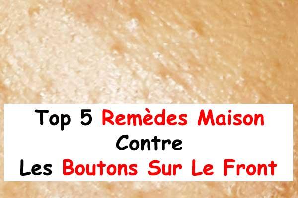 Top 5 Remèdes Maison Contre Les Boutons Sur Le Front - La ...