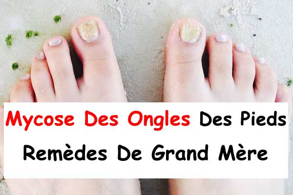 Mycose Des Ongles Des Pieds Remèdes De Grand Mère La
